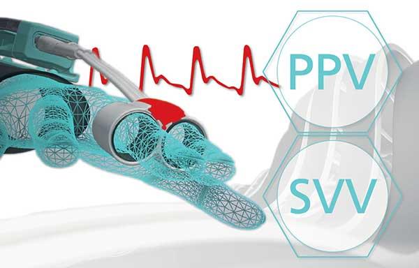 CNAP PPV SVV Technology